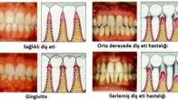 Dişeti Hastalıkları