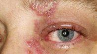 Göz Uçuğu (Herpes)