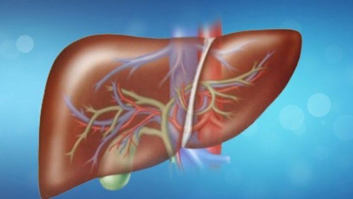 Karaciğer Apsesi