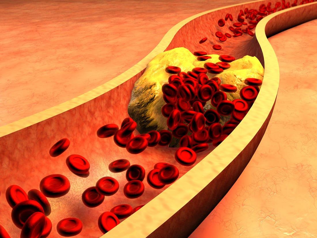 kolesterol belirtileri neler